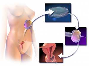 Blausen_0060_AssistedReproductiveTechnology